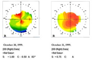 Nachweisbare Wirkung mit Augentraining bei Hornhautverkrümmung